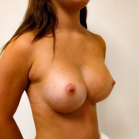 Før og efter billeder brystforstørrelse