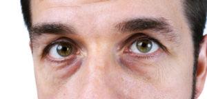 Poser under øjnene