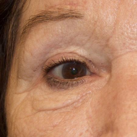øjenbrynsløft_efter