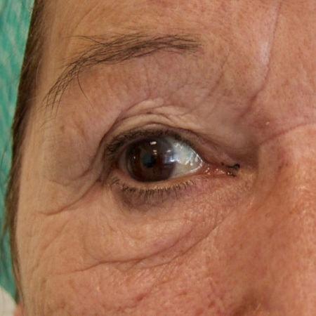 øjenbrynsløft_før