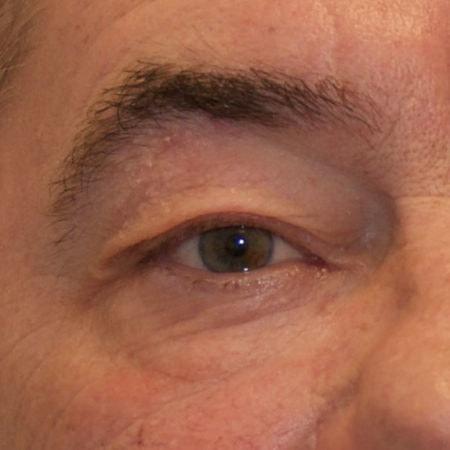 øjenlågsoperation_før
